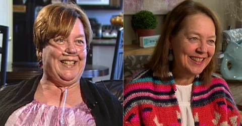 How I Lost 120 lbs, Cured My Diabetes, & Avoided a Lung Transplant
